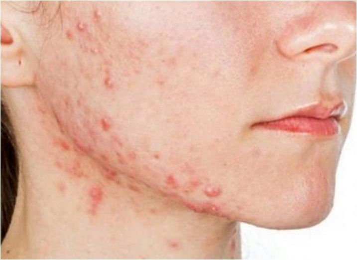 Методи за прилагане на ламинария за лице и шия в козметологията