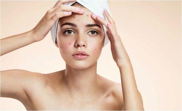 Серум за проблемната кожа: използване и ефект