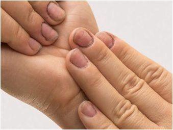 За и срещу маникюр в болница по майчинство
