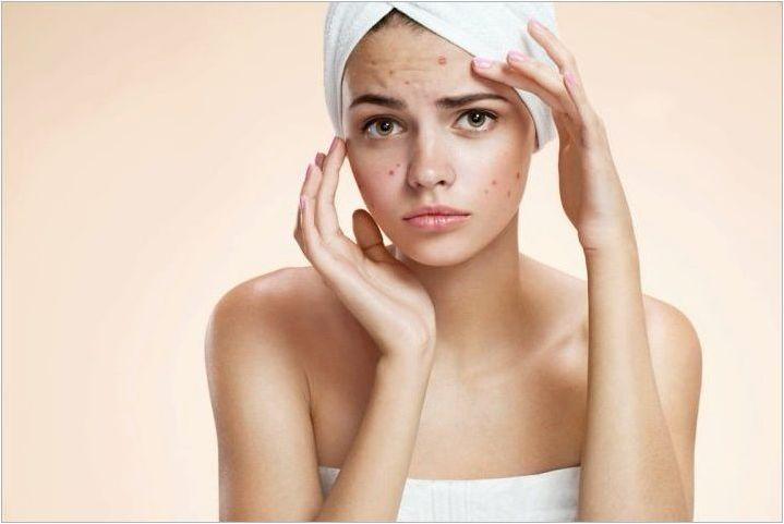 Акне козметика: Как да изберем и използвате?